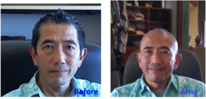 "Before and after shots of Dr. Shiramizu, during a  previous ""shave your head"" fundraiser in Honolulu for cancer research."